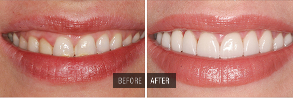 a female smiles showing before and after results